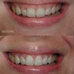 Cosmetics Dentistry in Abu Dhabi