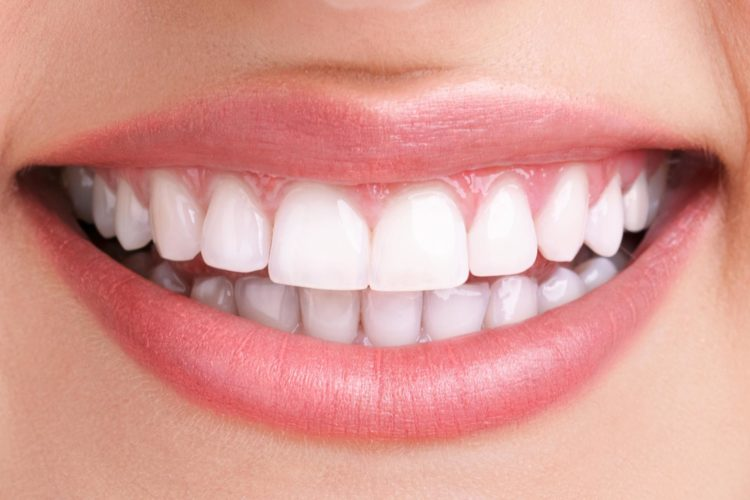teeth whitening after 1