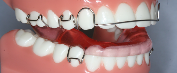Dental Braces in Abu Dhabi