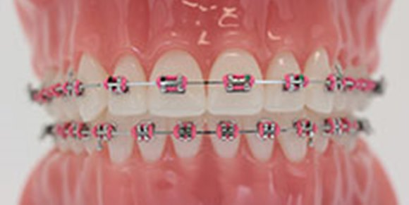 Dental Braces In Abu Dhabi Orthodontist In Abu Dhabi