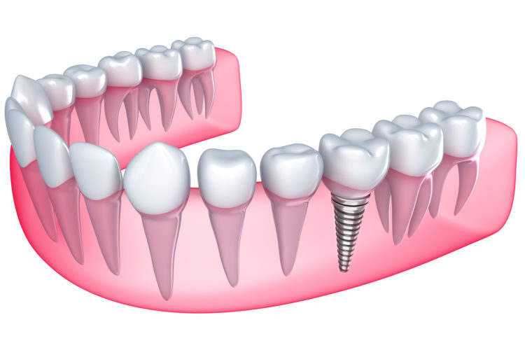 Dental implants in Abu Dhabi - Best Dental Implant Clinic in Abu Dhabi