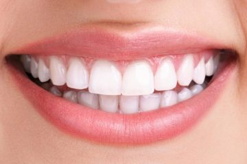 Cosmetics Dentistry in Abu Dhabi - Teeth Whitening in Abu Dhabi